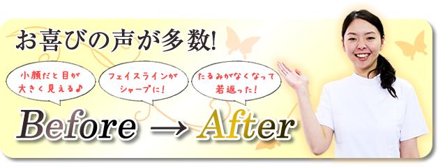 お喜びの声が多数!Before→After